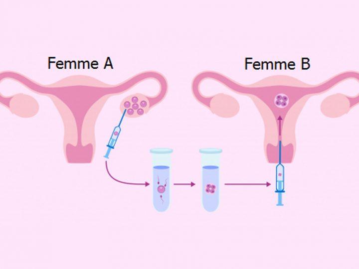 Méthode ROPA  (Réception des ovules de la partenaire)