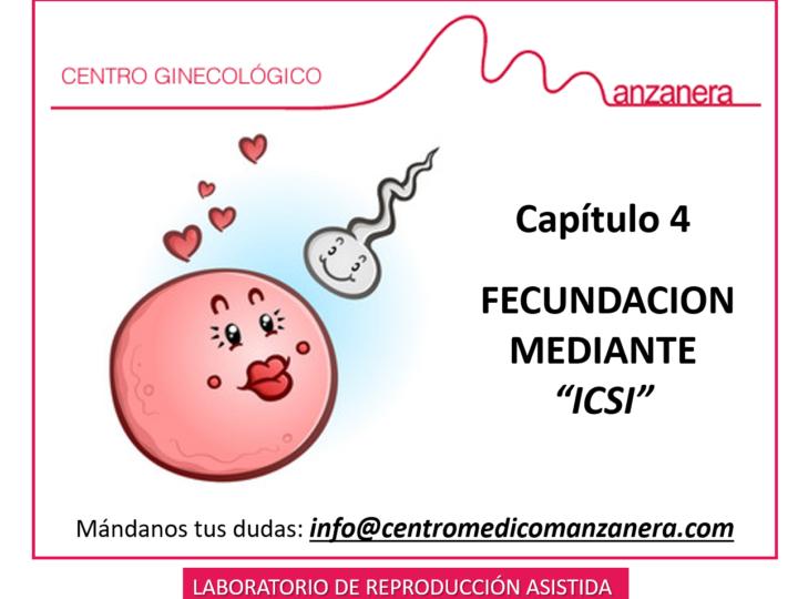 CAPITULO 4. FECUNDACION POR ICSI EN LOS TRATAMIENTOS DE FERTILIDAD (FIV)