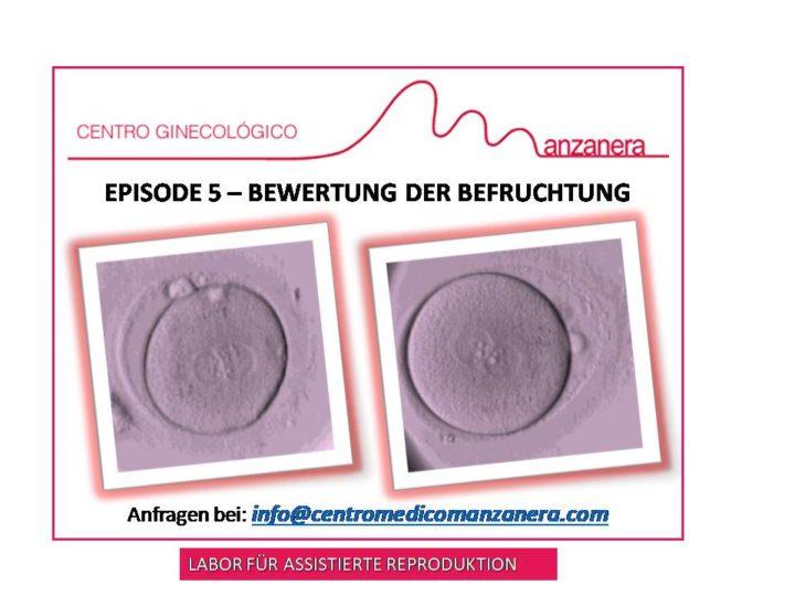 EPISODE 5. BEWERTUNG DER BEFRUCHTUNG BEI ASSISTIERTER REPRODUKTION (IVF-ICSI) -BEHANDLUNGEN