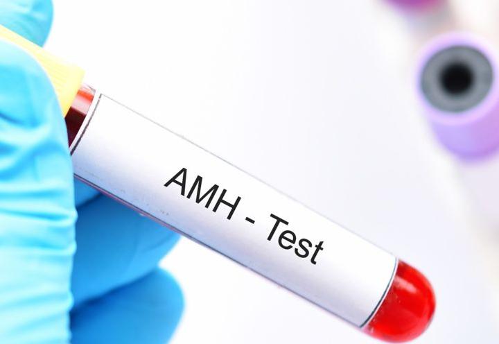REPRODUCCION Y HORMONA ANTIMÜLLERIANA (AMH)
