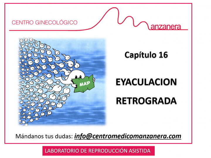 CAPITULO 16. EYACULACION RETROGRADA EN REPRODUCCION ASISTIDA (FIV)
