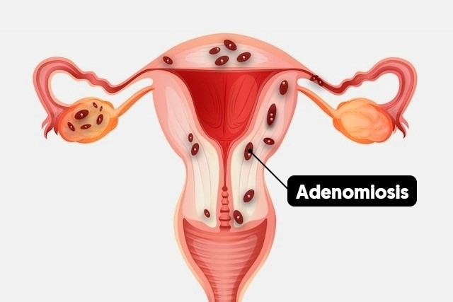 ADENOMIOSIS AND ASSISTED REPRODUCTION (IVF / ICSI)